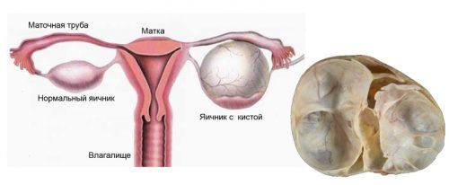 Образование многокамерной кисты яичника