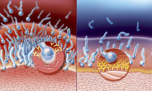 Сопротивляемость организма инфекции