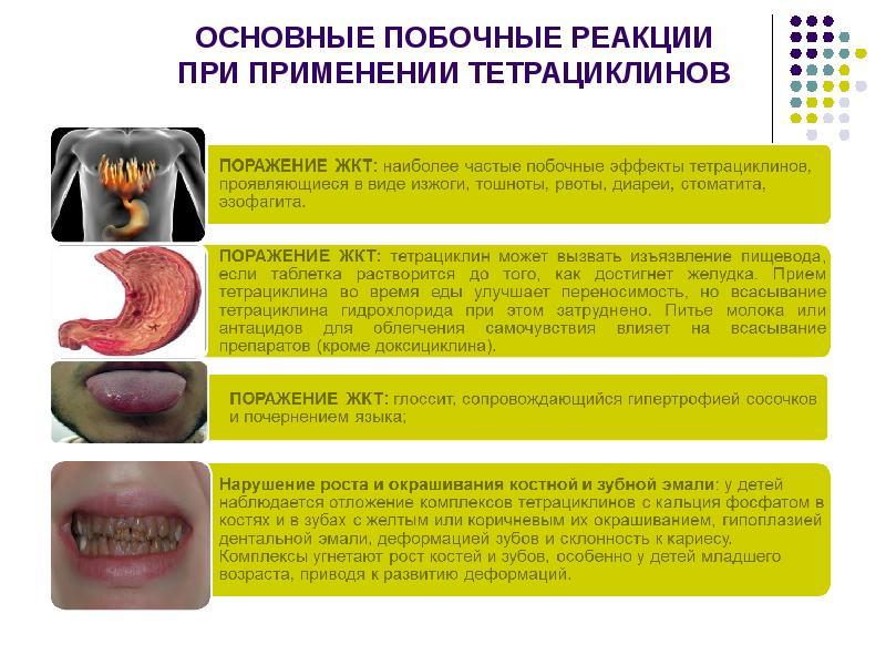 Осложнения при приеме антибиотиков