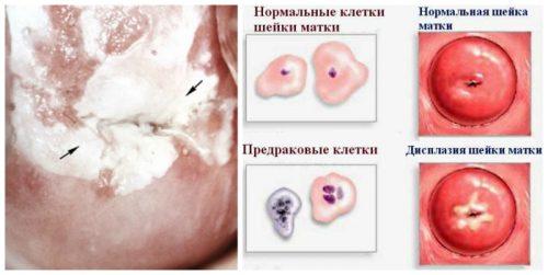 Схема дисплазии шейки матки