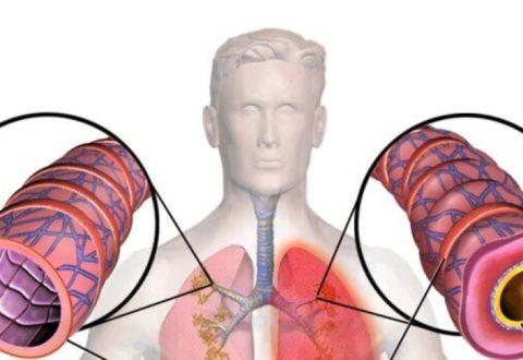 Бронхиальная пневмония – это воспалительный процесс, при котором нарушается дренаж нижних отделов бронхов и формируются очаговые прикорневые очаги в легких