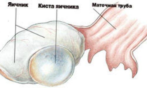 Проявление серозной кисты яичника