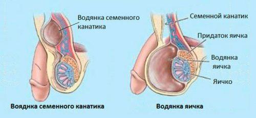 Гидроцеле или водянка яичка