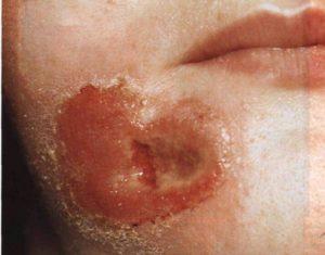 Разрушение кожных покровов