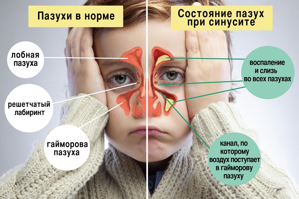 Пазухи ребенка в норме и при синусите