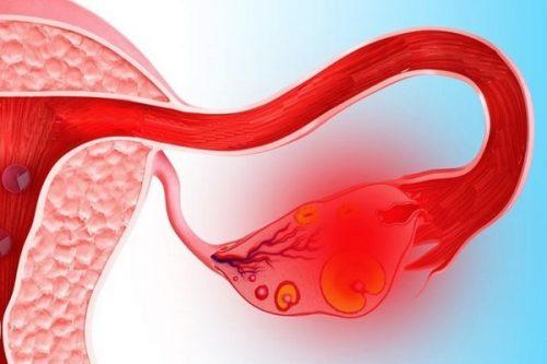 Проявление апоплексии яичника