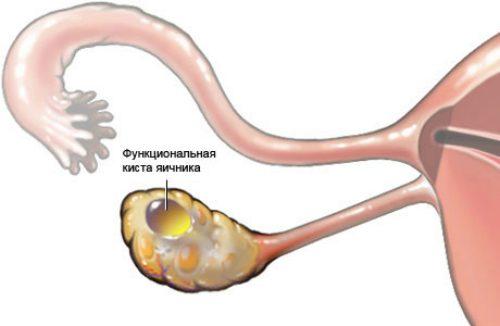 Развитие фолликулярной кисты яичника