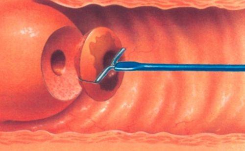 Биопсия шейки матки
