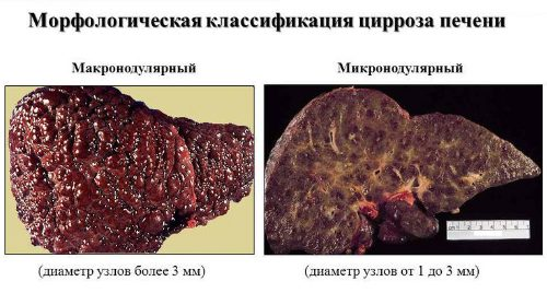 Морфологическая классификация цирроза