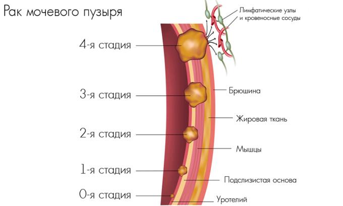 Главным симптомом рака мочевого пузыря считается кровь в моче, которая бывает даже при небольшой опухоли. Кроме того, больной страдает затрудненным либо слишком частым мочеиспусканием, болями в пояснице, слабостью, потерей веса