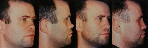 Хирургическое восстановление носа
