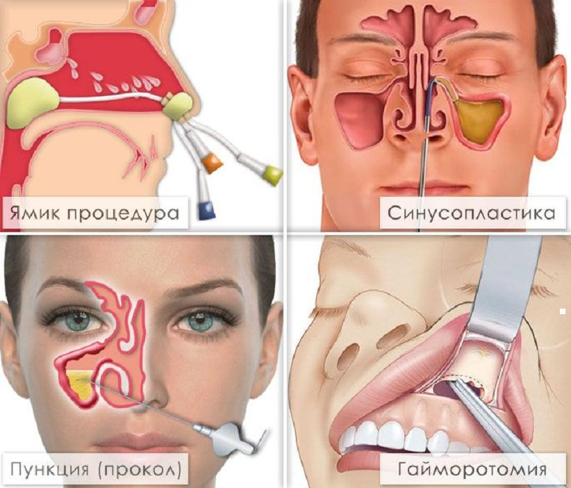 Процедуры при лечении гайморита