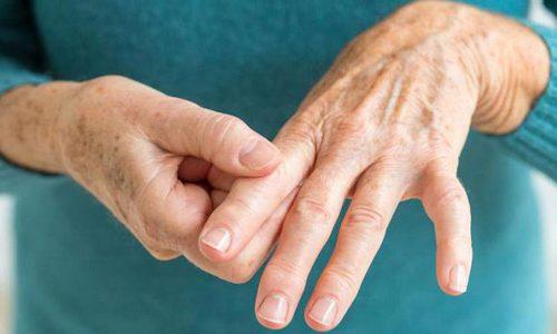 Проблема хламидийного артрита