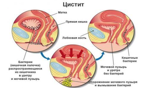 Воспаление мочевого пузыря у женщин требует немедленного лечения, поскольку заболевание приводит не только к нарушению общего самочувствия, но и к распространению воспалительного процесса на другие органы мочеполовой системы