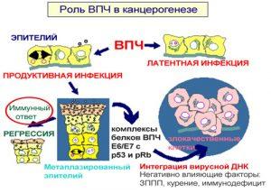 Роль ВПЧ в канцерогенезе