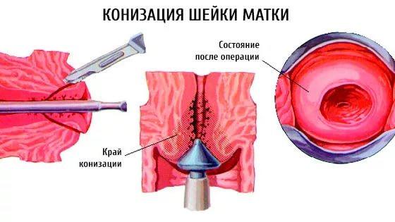 Процедура конизации