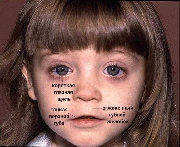 Симптомы фетального алкогольного синдрома