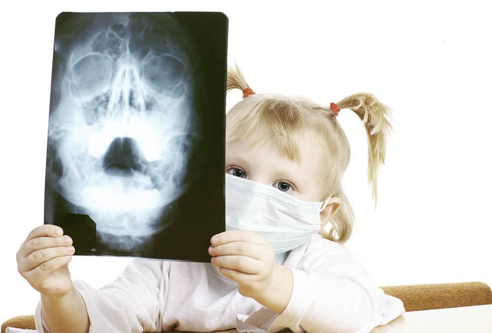 Рентгеновский снимок гайморовых пазух
