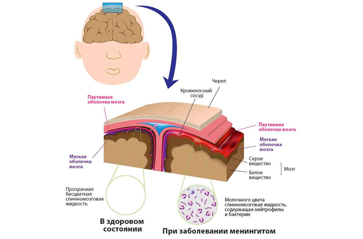 Здоровая и больная оболочка мозга