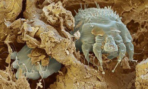 Чесоточный клещ в коже под микроскопом