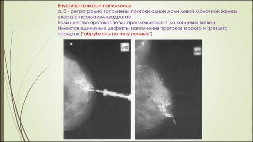 Внутрипротоковые папилломы на снимке