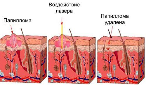 Схема лазерного удаления папилломы