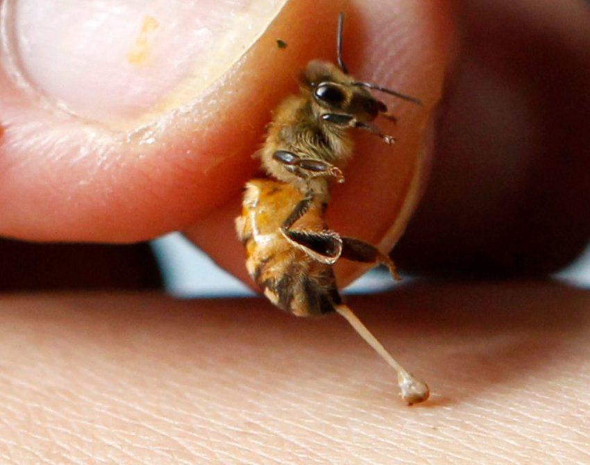Пчелиный укус