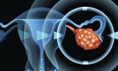 Развитие андробластомы яичника