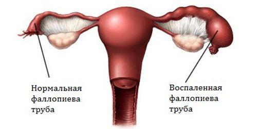 Воспаление при оофорите