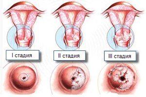 Стадии развития дисплазии шейки матки