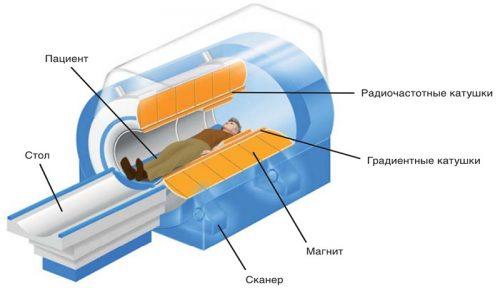 Схема МРТ
