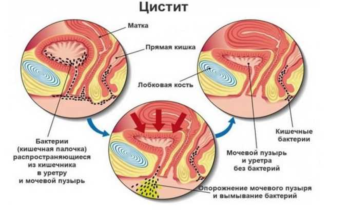 Циститом называют воспаление мочевого пузыря. Его возбудителями могут быть грибки, вирусы (в том числе, грипп и парагрипп), венерические инфекции, кишечная палочка