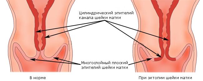 Схема эктопии