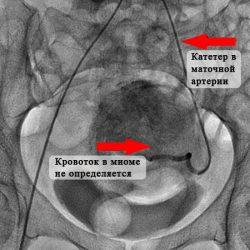 Катетер в маточной артерии