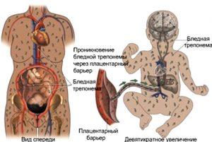 Развитие врожденного сифилиса